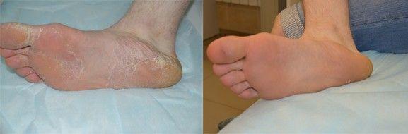 Чем и как лечить грибок стопы и ногтя.