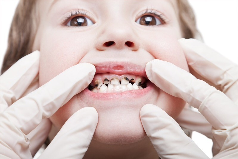 Нужно ли лечить молочные зубы?